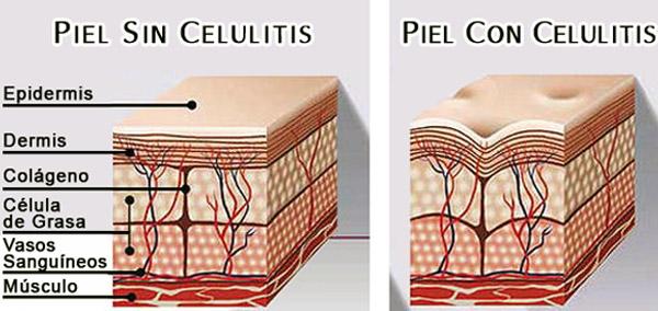 piel con y sin celulitis