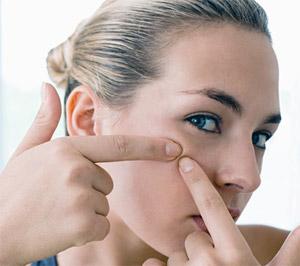 milagro para el acne remedios eficaces