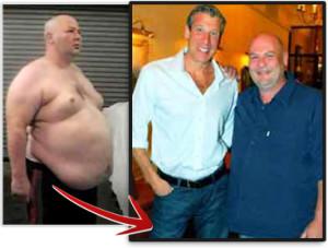 Tratamientos de Obesidad